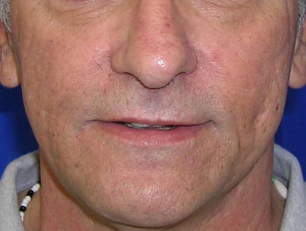 After 2 Profractional treatments to cheeks Photos by C. Elliott, M.D.