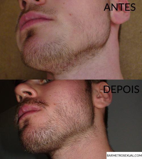 crescer-barba-onde-nao-tem