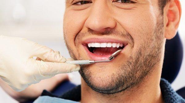 Clarear Os Dentes Naturalmente Mitos E Verdades Bar Metrosexual